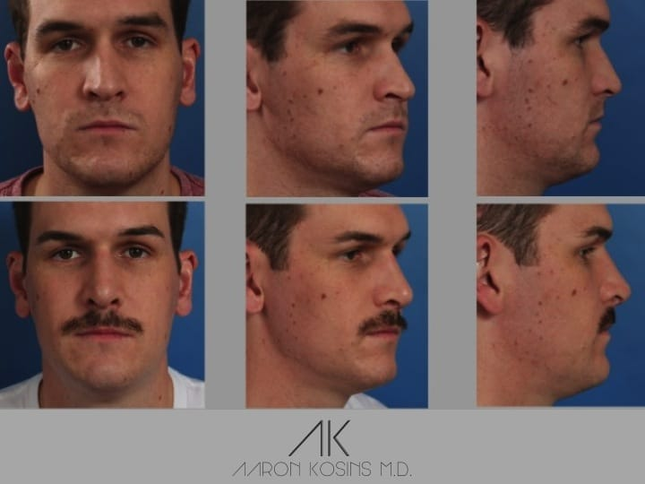 Slide rhino57 - Rhinoplasty Newport Beach