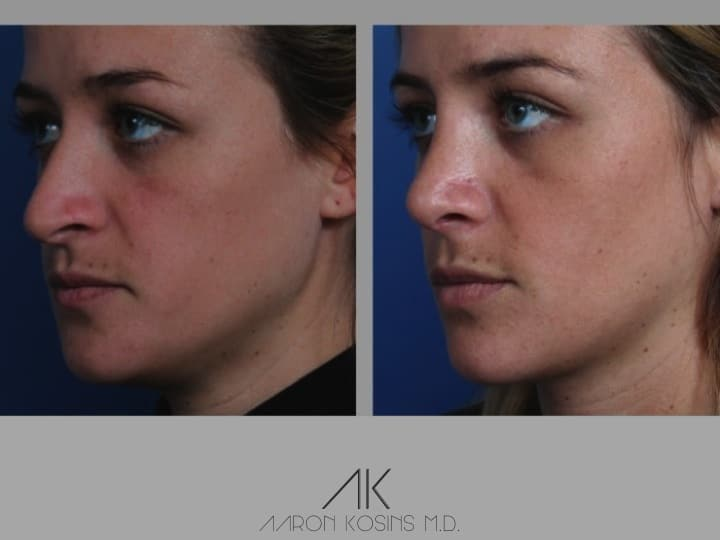 Slide rhino58 - Rhinoplasty Newport Beach