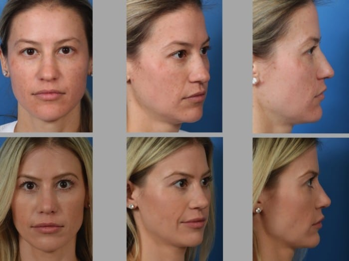 Slide rhino6 - Rhinoplasty Newport Beach
