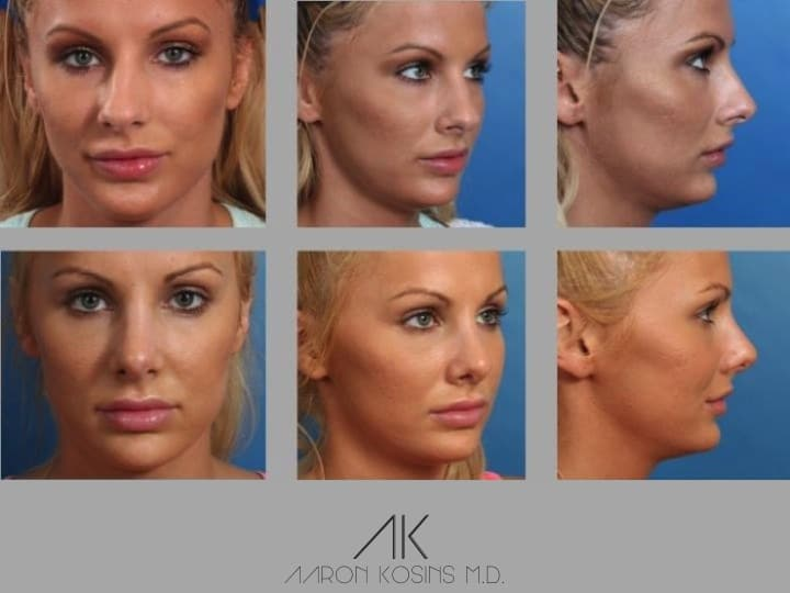 Slide rhino60 - Rhinoplasty Newport Beach