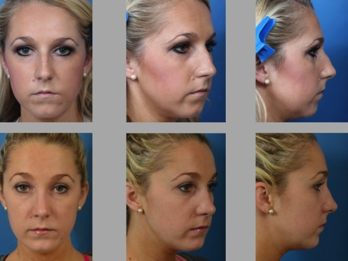 Slide rhino61 - Rhinoplasty Newport Beach