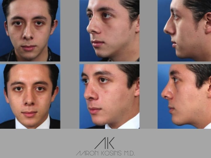 Slide rhino62 - Rhinoplasty Newport Beach