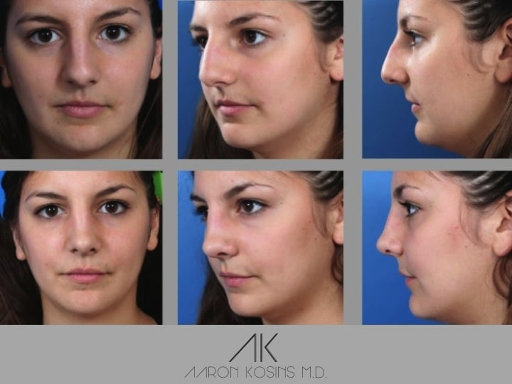 Slide rhino65 - Rhinoplasty Newport Beach