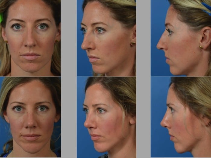Slide rhino66 - Rhinoplasty Newport Beach