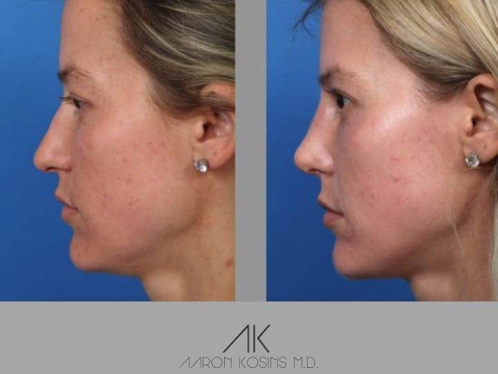 Slide rhino67 - Rhinoplasty Newport Beach