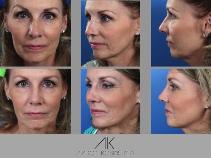 Slide rhino68 - Rhinoplasty Newport Beach