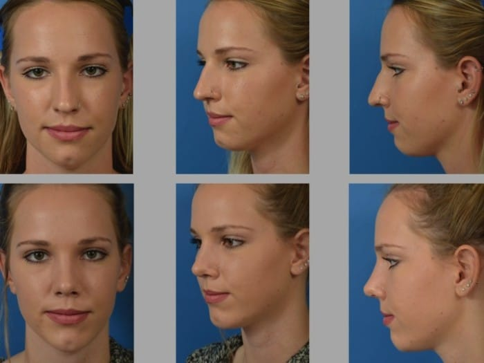 Slide rhino7 - Rhinoplasty Newport Beach