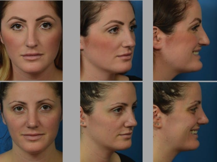 Slide rhino72 - Rhinoplasty Newport Beach