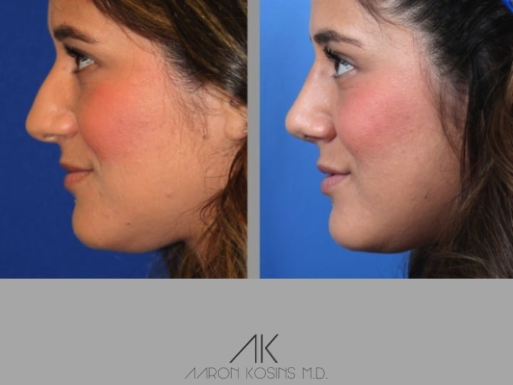 Slide rhino73 - Rhinoplasty Newport Beach