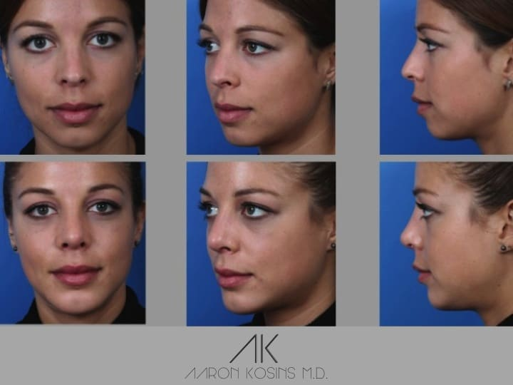 Slide rhino76 - Rhinoplasty Newport Beach