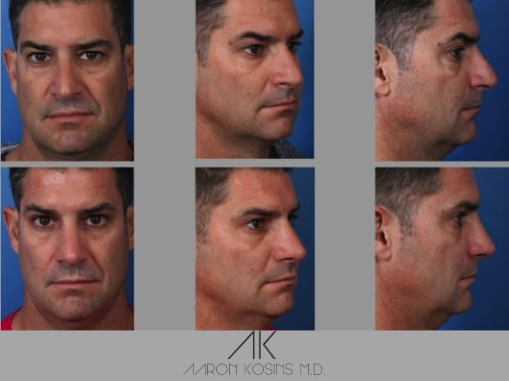 Slide rhino77 - Rhinoplasty Newport Beach