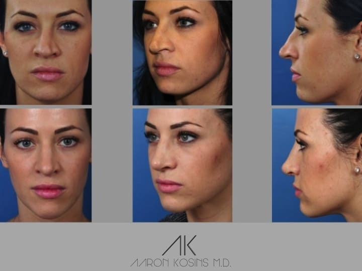 Slide rhino78 - Rhinoplasty Newport Beach