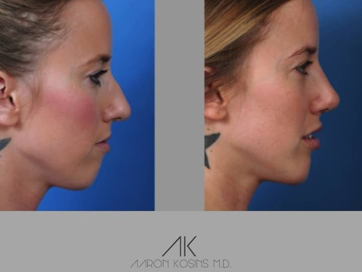 Slide rhino79 - Rhinoplasty Newport Beach