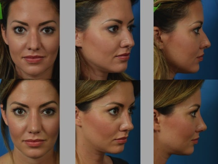 Slide rhino8 - Rhinoplasty Newport Beach