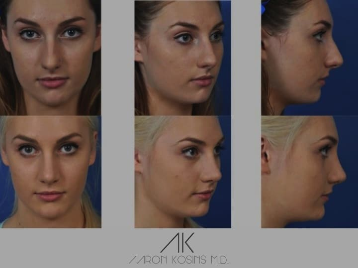 Slide rhino80 - Rhinoplasty Newport Beach