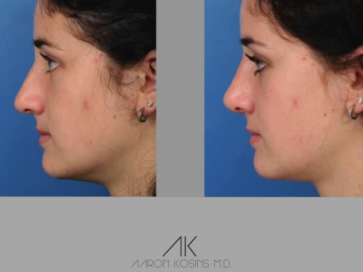 Slide rhino82 - Rhinoplasty Newport Beach