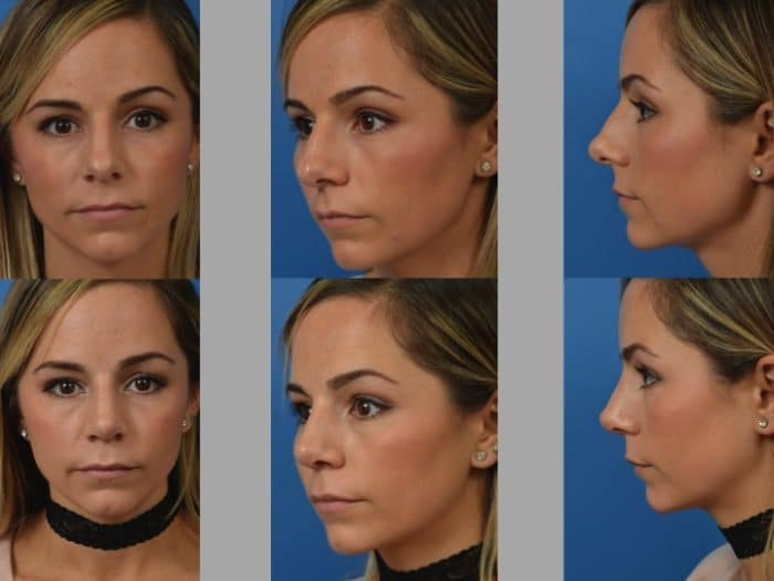 Slide rhino9 - Rhinoplasty Newport Beach