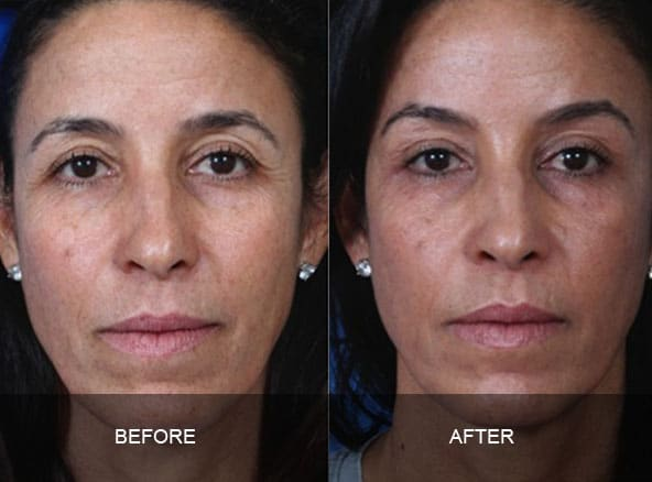 facial 3 - Facial Aging and Rejuvenation
