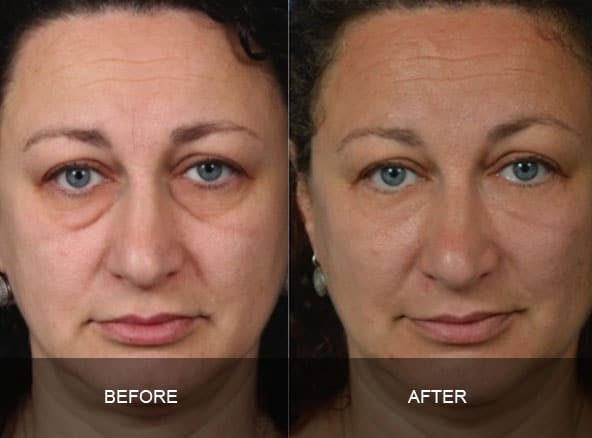 facial 5 - Facial Aging and Rejuvenation