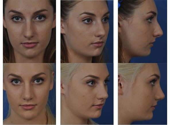 facial 8 - Rhinoplasty Newport Beach