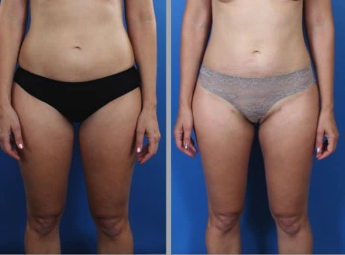 lipo 1 - Fat Transfer and Liposculpture