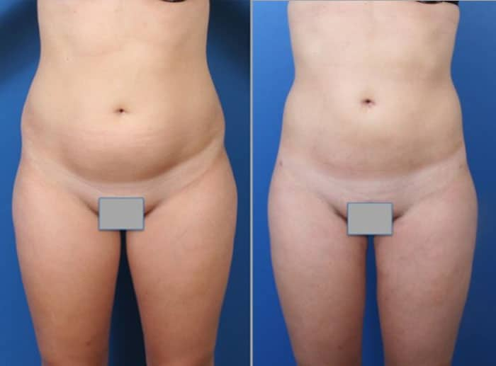 lipo 3 - Fat Transfer and Liposculpture