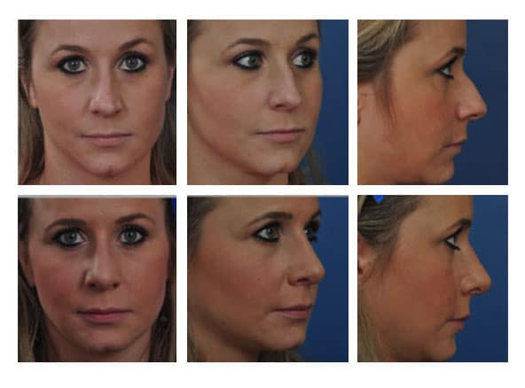 Rhinoplasty 4 - Newport Beach Rhinoplasty – Secondary / Revision Rhinoplasty & Ethnic Rhinoplasty