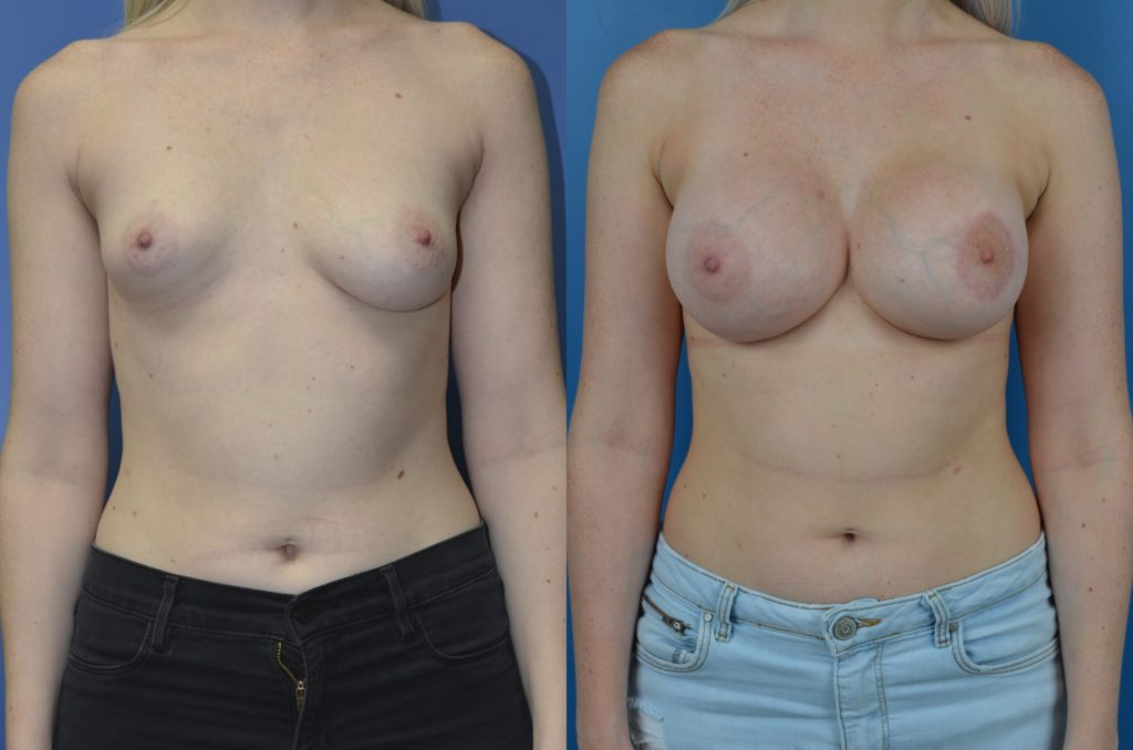 Slide300 1024x678 - Newport Beach Breast Augmentation