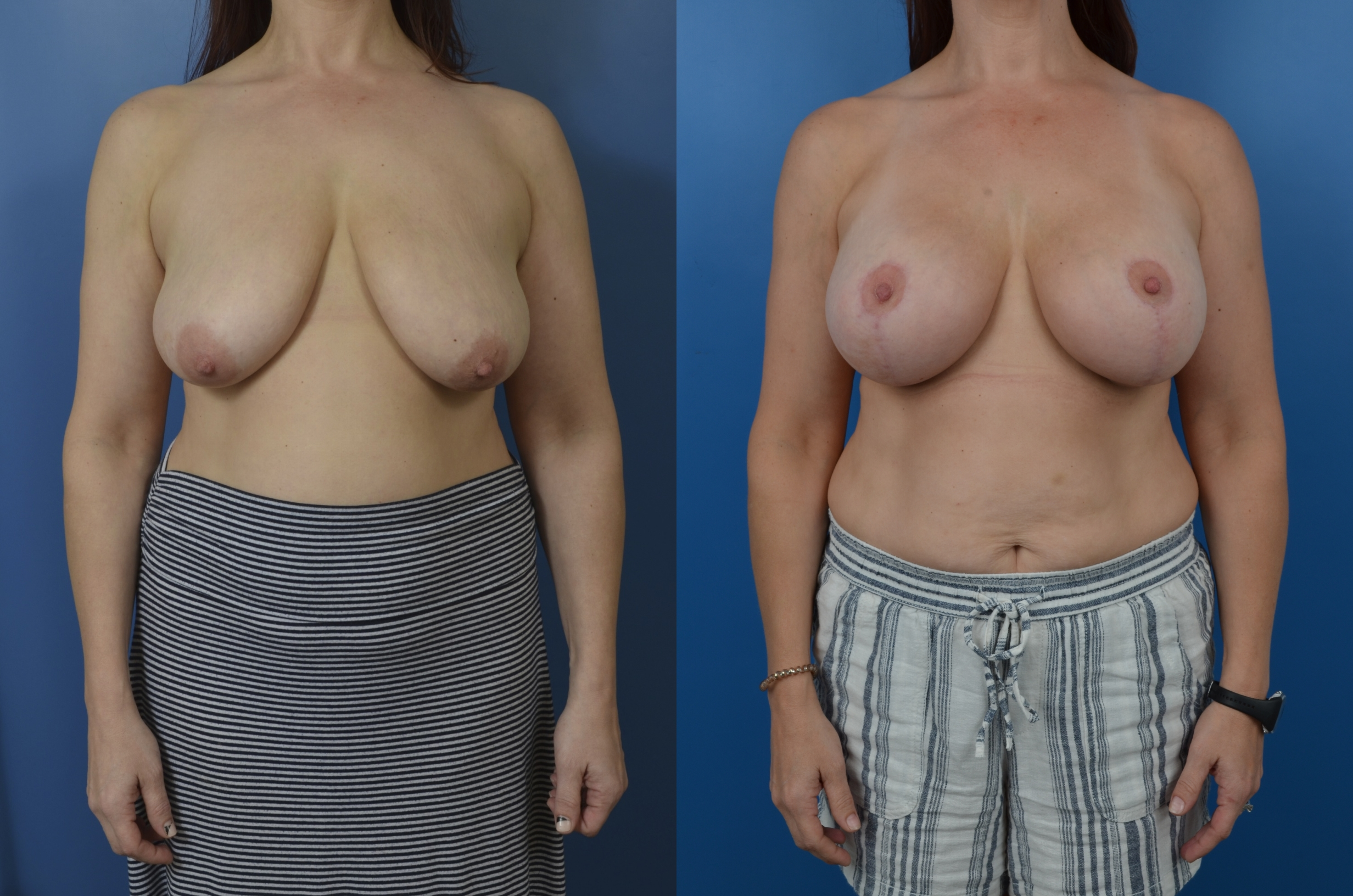 Slide302 - Mastopexy / Breast Lift Newport Beach