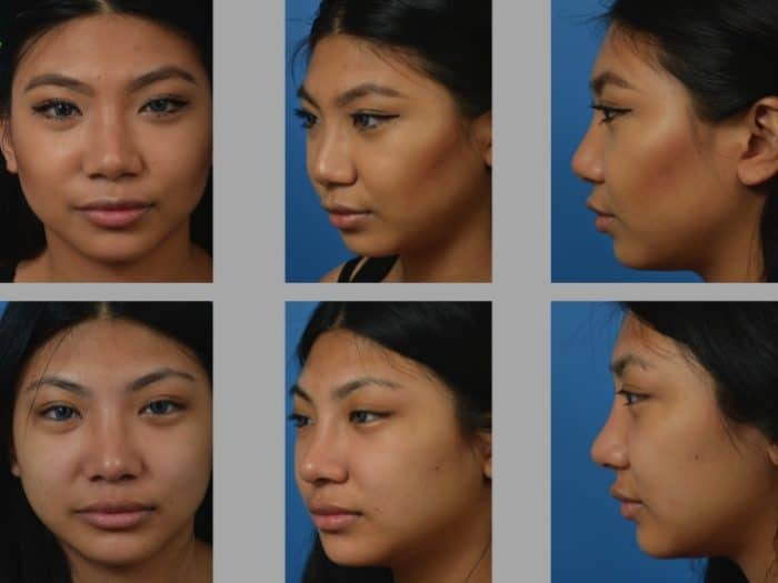 Slide 2 18 - Newport Beach Rhinoplasty – Secondary / Revision Rhinoplasty & Ethnic Rhinoplasty