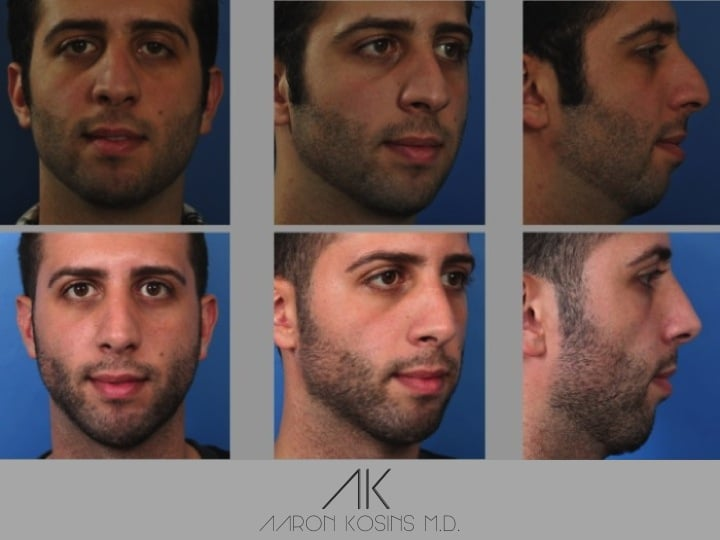 Slide 2 23 - Newport Beach Rhinoplasty – Secondary / Revision Rhinoplasty & Ethnic Rhinoplasty