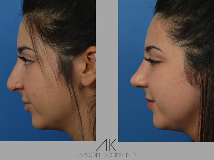 Slide09 - Rhinoplasty Newport Beach