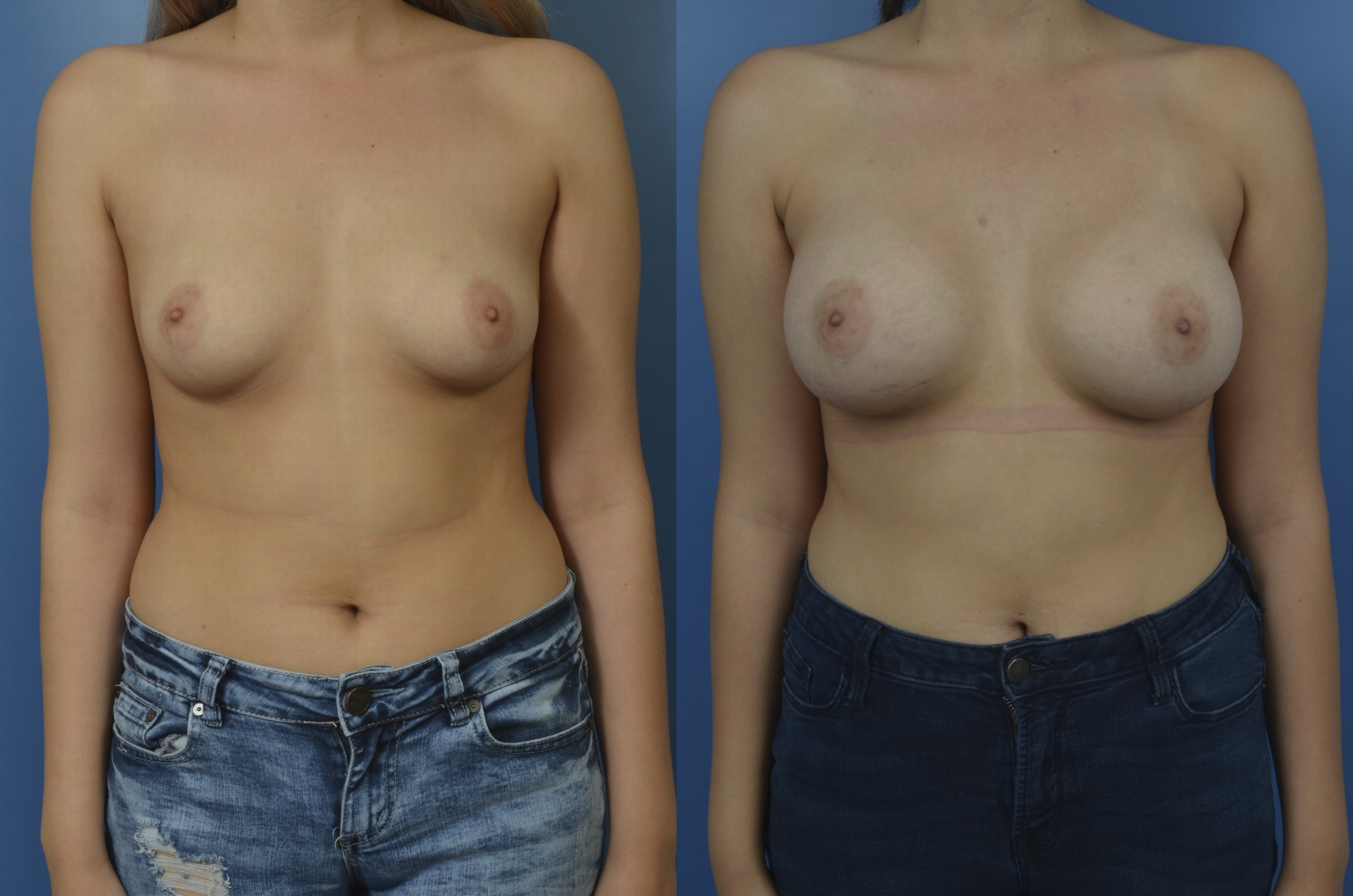 Slide 307 - Newport Beach Breast Augmentation