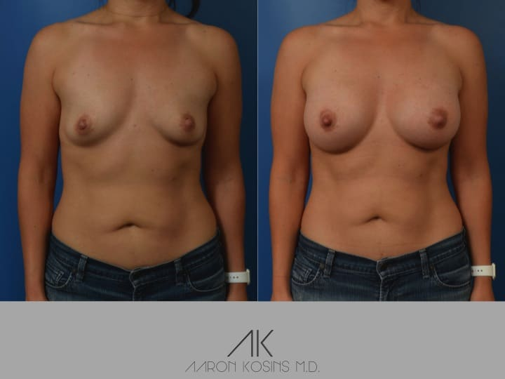 Slide04 - Newport Beach Breast Augmentation