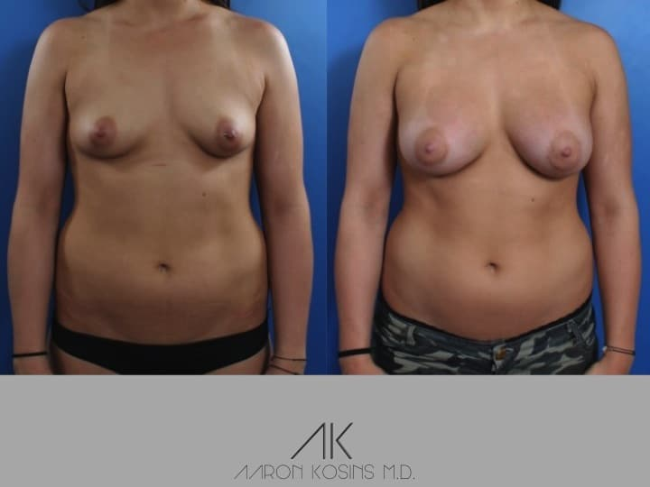 Slide1 2 - Newport Beach Breast Augmentation