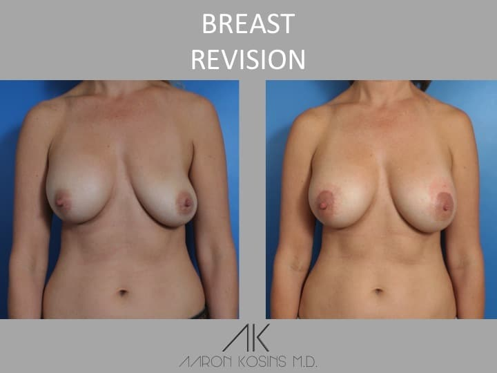 Slide1 - Newport Beach Breast Augmentation