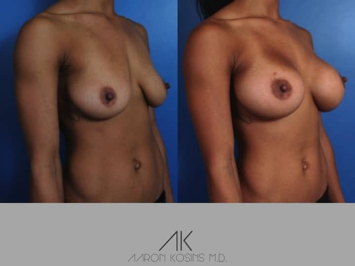 Slide100 - Newport Beach Breast Augmentation