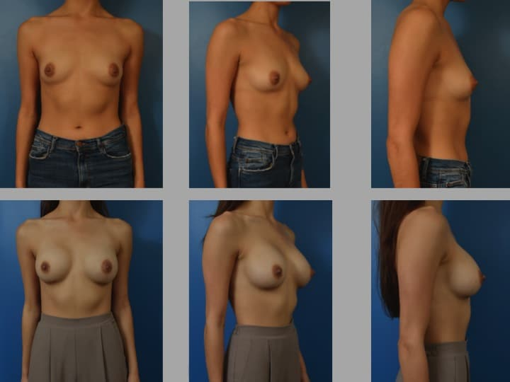 Slide111 - Newport Beach Breast Augmentation