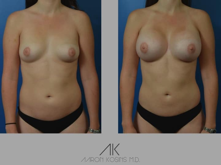 Slide15 - Newport Beach Breast Augmentation