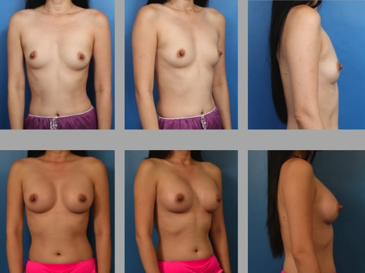 Slide16 - Newport Beach Breast Augmentation