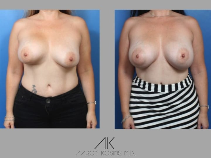 Slide178 - Newport Beach Breast Augmentation