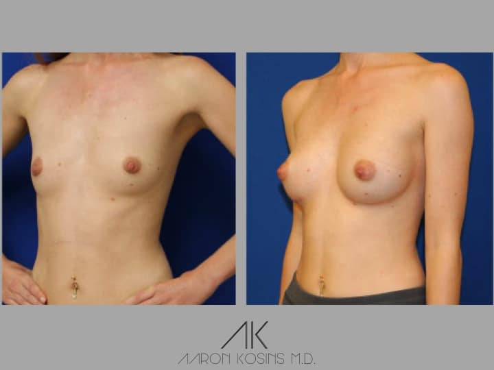 Slide2 - Newport Beach Breast Augmentation