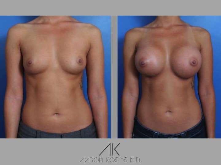 Slide3 - Newport Beach Breast Augmentation