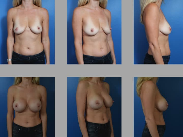 Slide30 - Newport Beach Breast Augmentation