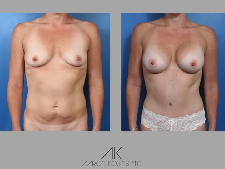 Slide31 - Newport Beach Breast Augmentation
