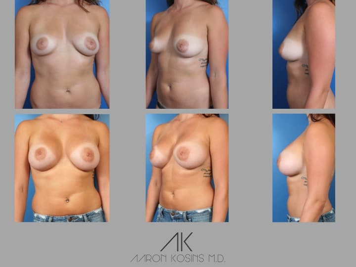 Slide33 - Newport Beach Breast Augmentation