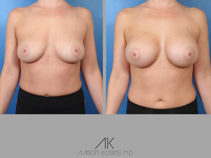 Slide34 - Newport Beach Breast Augmentation
