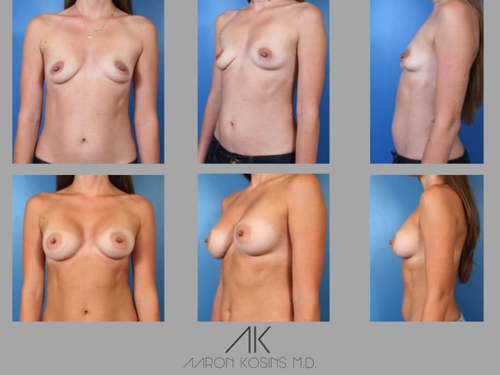 Slide36 - Newport Beach Breast Augmentation