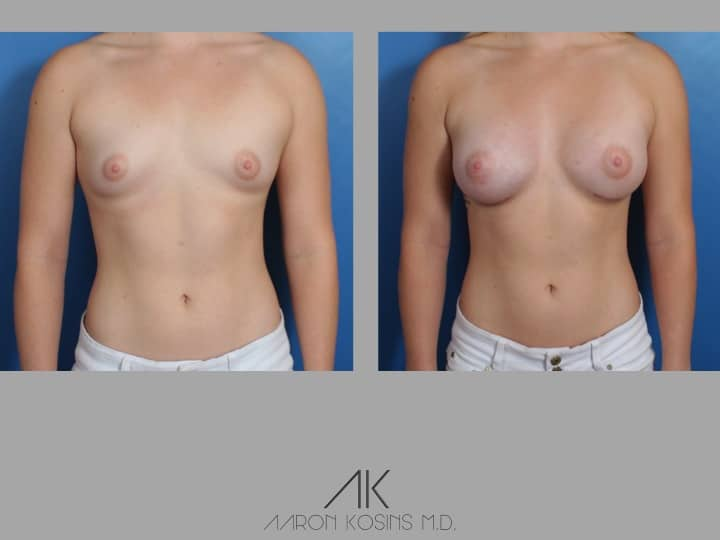 Slide41 - Newport Beach Breast Augmentation