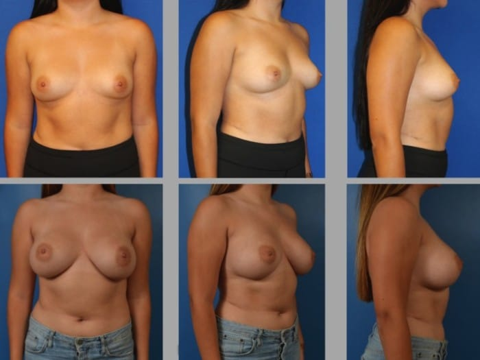 Slide45 700x525 - Newport Beach Breast Augmentation